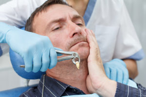 broken tooth