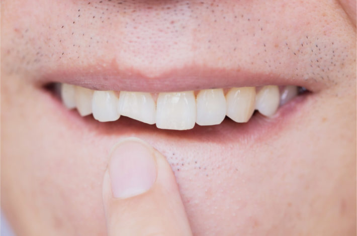 What to do if you hit your tooth and it is broken