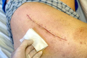 Open Wound Care After Surgery