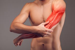 arm muscle strain