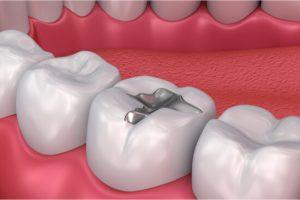 tooth filling illustration