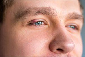 style on upper eyelid