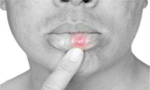 Canker sore can develop to any lining of the mouth.