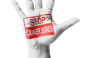 Canker sores are painful. Pain relievers can help alleviate discomfort.