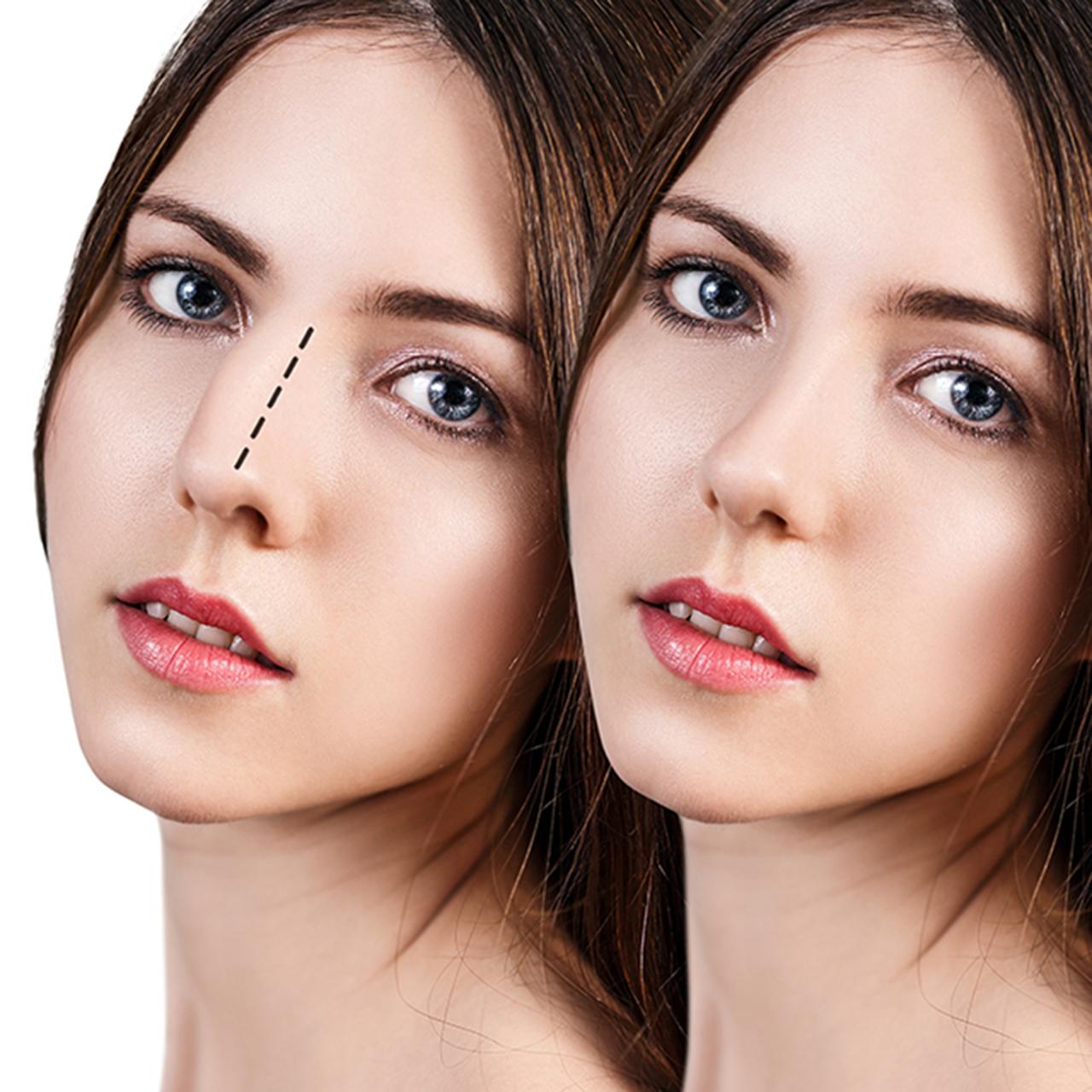 rhinoplasty nose job