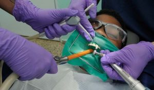 tooth injury surgery treatment