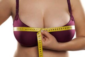Breast Hypertrophy