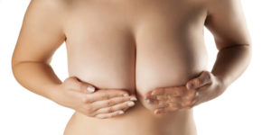 Breast Hypertrophy
