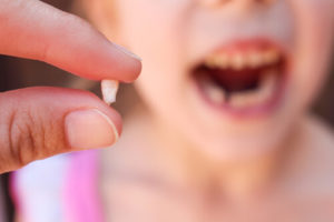What to do if you hit your tooth or your child lost tooth
