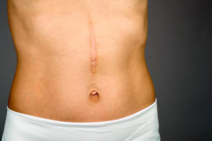 Scar Tissue Removal Surgery