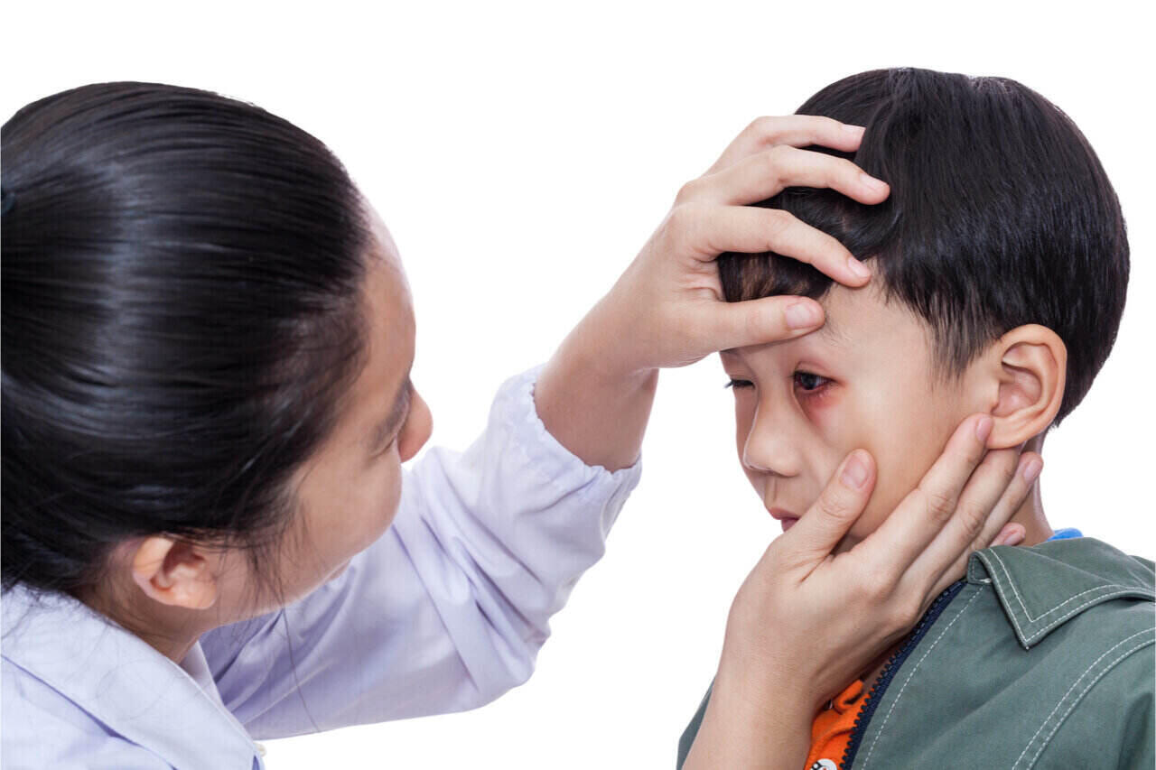Apply eye injury first aid if possible. If not, seek the help of an eye doctor.